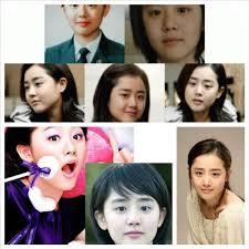 moon geun young no plastic surgery