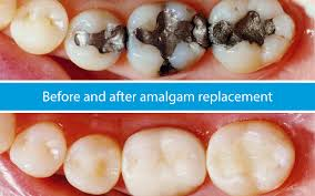 Image result for silver filling removal