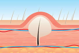 ingrown hair removal tips treatment