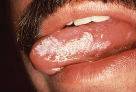 white patches of the mucosa