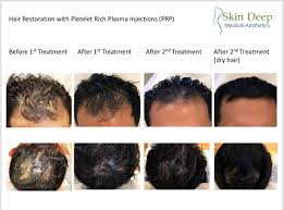 cal research has shown that platelets carry with them important growth factors which induce and mainn hair growth and formation