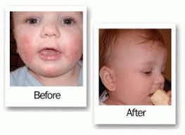 Baby Eczema On Face Treatment - 2018 images & pictures - Pediatric ...