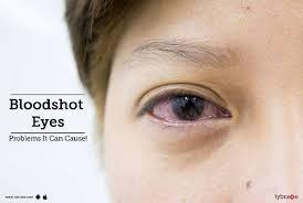 Bloodshot Eyes - Problems It Can Cause! - Lybrate English | DailyHunt