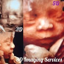 3d ultrasound bronx ny. Plain Ultrasound Photo Of 3D Imaging Services  New York NY United States Ultrasound Inside 3d Bronx Ny N