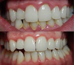 12 home remes to remove dental plaque tartar naturally