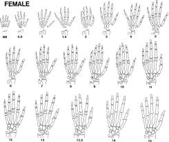 Bone Age Wrist Chart Somatic Growth And Maturation Oncohema Key
