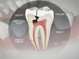 Image result for root canal meaning