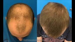 vitamins regrow lost hair how to use olive oil for hair loss