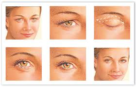 Image result for Eyelid Surgery images