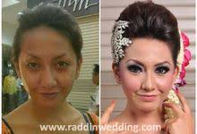 before after by raddin wedding