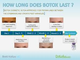 How Long Does Botox Last How Long Does Botox Last