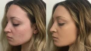 covering acne scars using concealer makeup