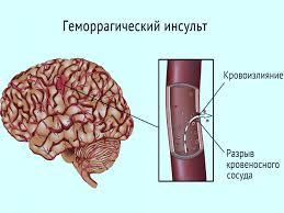 dan om de hersenvaten te versterken
