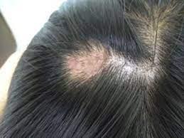 頭皮 湿疹 ストレス
