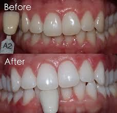 Veneer Teeth Color Chart Bedowntowndaytona Com