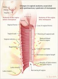Vaginal and Urinary Symptoms of Menopause | Patient Information ...