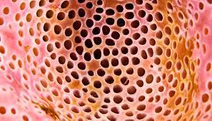 Pattern Phobia