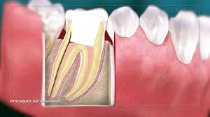 $1,186 for anterior teeth, $1,424 for premolars, and $1,581 for molars. Endodontic Re Treatment North Shore And Brookline Endodontics
