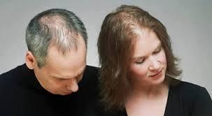 Resultado de imagem para queda de cabelo