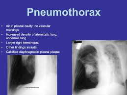 Pneumothorax Ppt Video Online Download