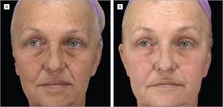 improved midface volume 6 months after treatment with poly l lactic acid sculptra