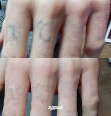 татуировки на пальце Rustattooru псков