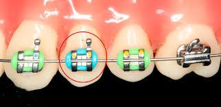 Parts Of Braces Northside Orthodontics Northside Orthodontics