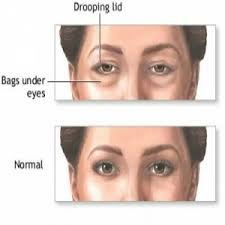 allergy is one of eye swelling causes some