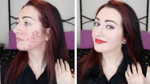 how i cover acne scarring redness makeup transformation chit chat jess bunty