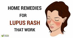 10 Best Home Remedies for Lupus Rash