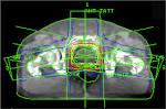 radiotherapy, conformal