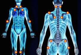 Fibromyalgia Tender Points Chart Fibromyalgia Pictures Flare Ups Rash Trigger Points And More