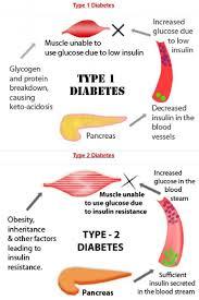 Venn Diagram Type 1 Type 2 Diabetes Difference Between Type1 And Type 2 Diabetes Venn Diagram