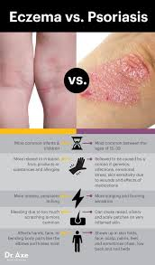 Dermatologists Often Fail to Treat These Root Causes of Eczema in ...