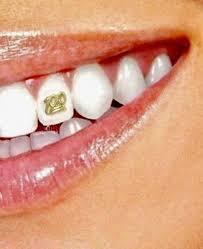 gold tooth jewelry dental gem ornament kit