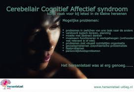 Overprikkeling hersenen symptomen