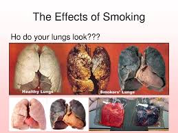 it s time to accept the damage smoking causes before it s too  it s time to accept the damage smoking causes before it s too late quit smoking research quit smoking articles and guides