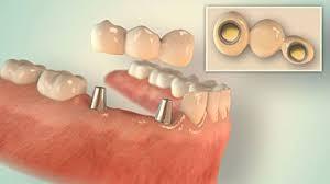Ihr Zahnarzt in Düsseldorf Eller - Happydens für ein strahlendes Lächeln ✓
