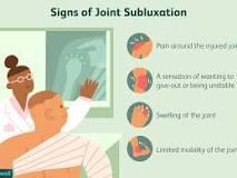 Image result for define subluxation