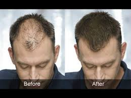 Male Or Female Pattern Baldness Treatments Stunning 48 Best Male Pattern Baldness Treatment Images On Pinterest Male On