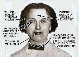File:Eleanor Reinhardt Mills (1888-1922) autopsy diagram by Dr ...
