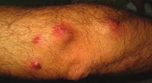 Serie parasitosis en Dermatología Miasis: diferentes formas de presentación  clínica