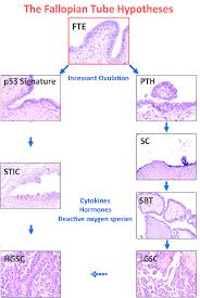 publication pdf the non ovarian origin and pathogenesis of figure