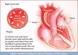 Mayo Clinic Blood Pressure Chart By Age Blood Pressure Chart What Is The Normal Blood Pressure Range