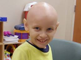 viral cancer ad the result of makeup and bald cap