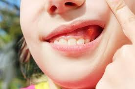 dental cyst and infection causes