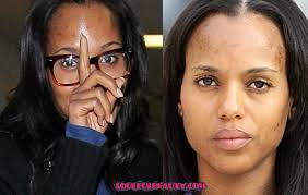 kerry washington reveals signs of hyperpigmentation and talks