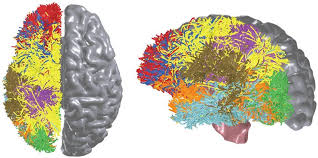 can we make the complete wiring diagram of the human brain a bluematter ""