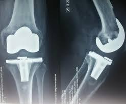 Контрольный осмотр пациента после замены коленного сустава через  Контрольный осмотр пациента после замены коленного сустава