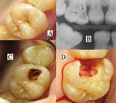 Dental Radiography Wikipedia